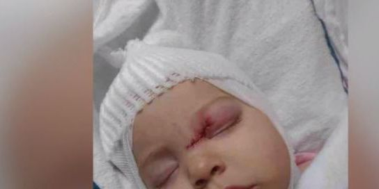 Baby girl suffers brain injury, undergoes surgery after dog attack