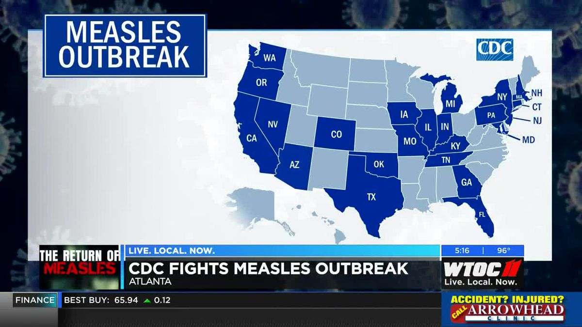 CDC fights measles outbreak