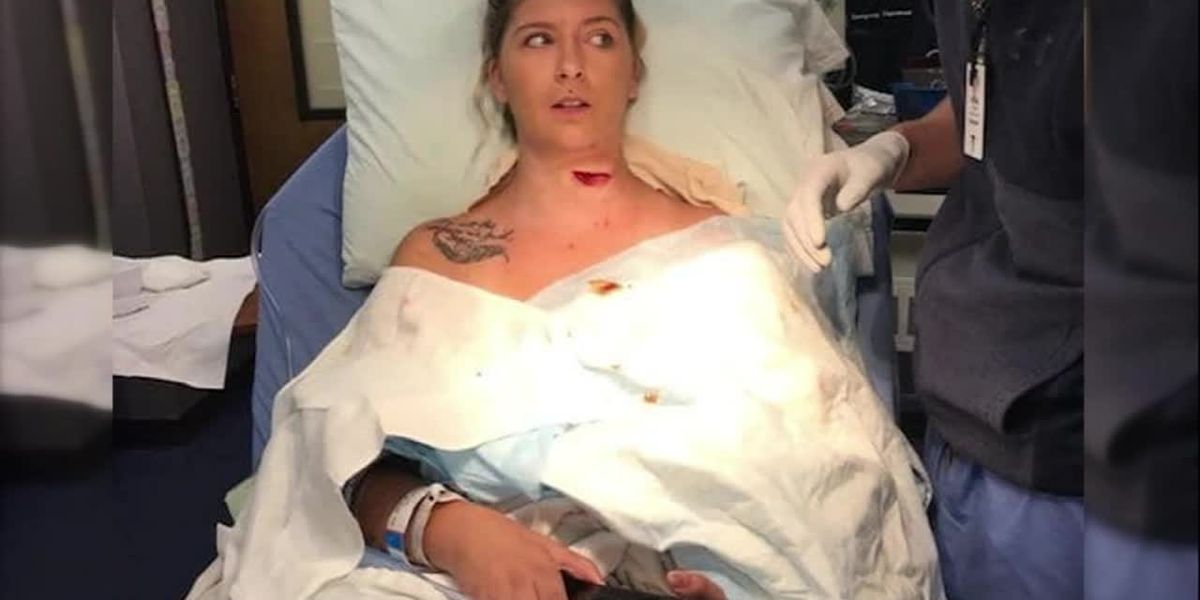 Woman's neck sliced in freak lawnmower accident